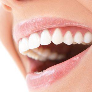 اصلاح طرح لبخند یا طراحی لبخند