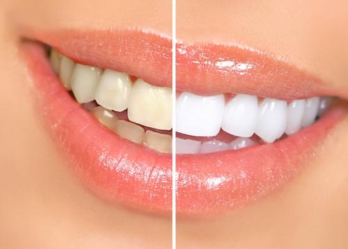 سفید کردن دندان ها با فرآیندبلیچینگ