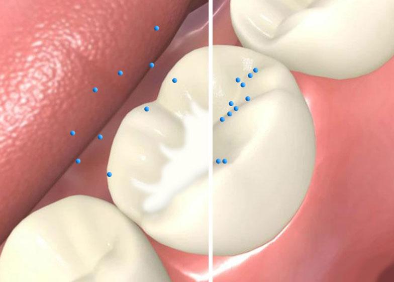 شیاربندی دندان با کمک سیلانت دندانپزشکی