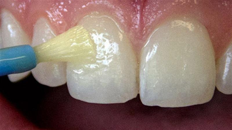 جرم گیری فلورایدتراپی دندان