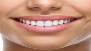 طول عمر دندان لمینت