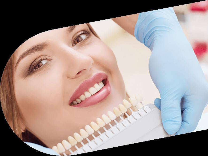 لمینیت دندان اصفهان دکتر فاطمه حیدری