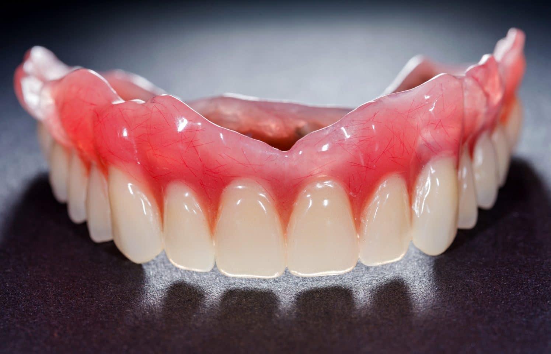 پروتزهای دندانی متحرک