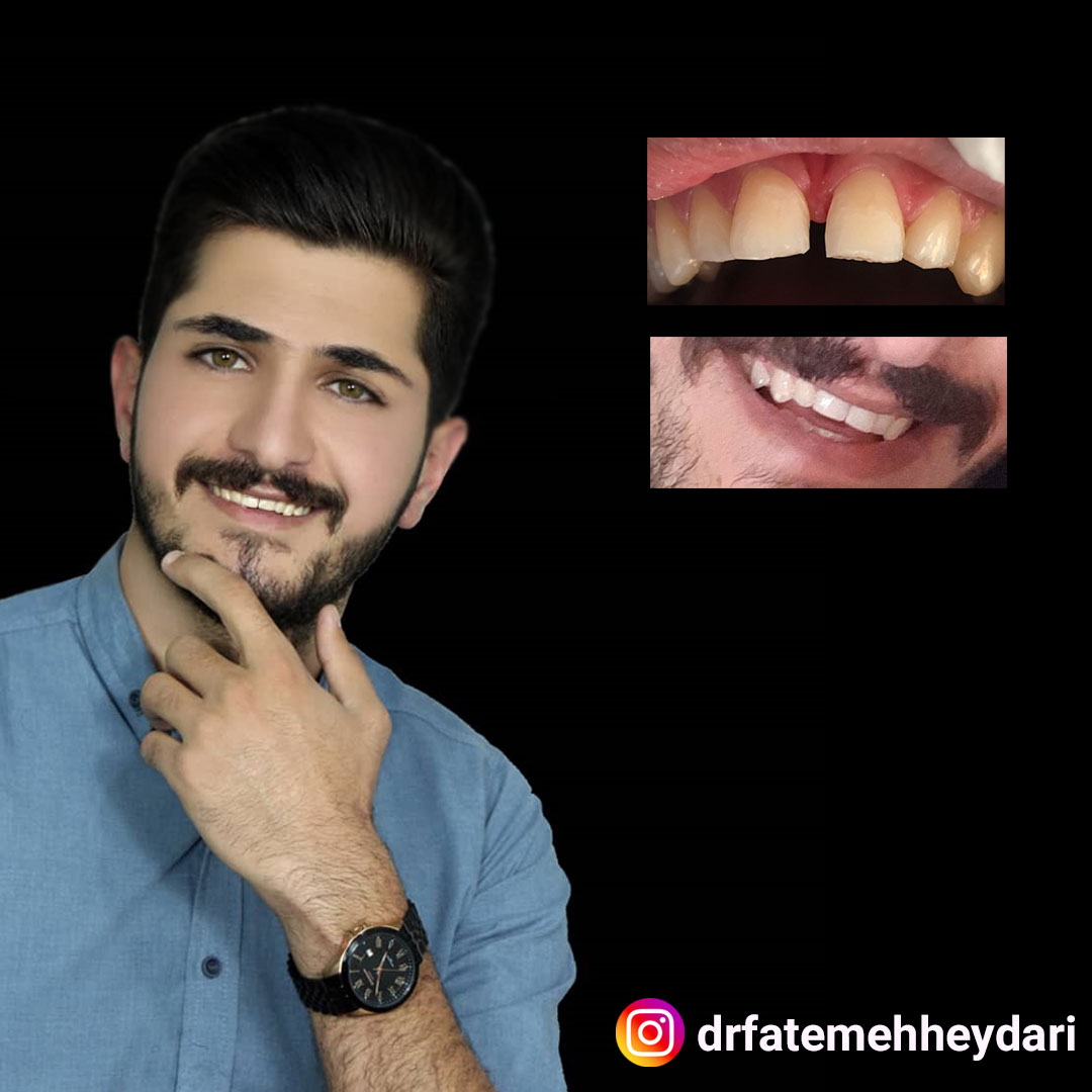 از بین بردن فاصله بین دندان ها