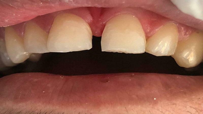 درمان دیاستم یا فاصله بین دندان ها