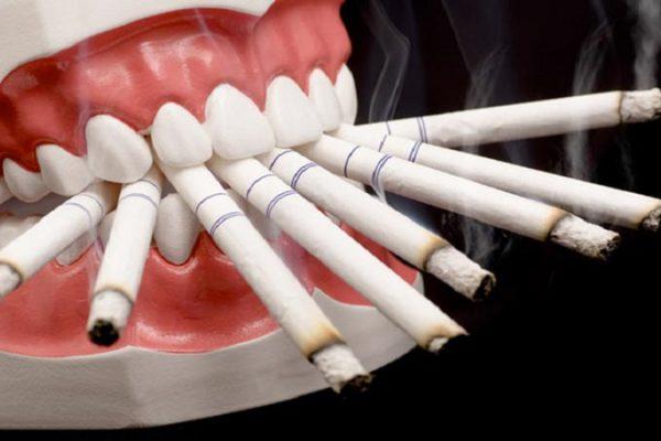 افراد سیگاری و دندان