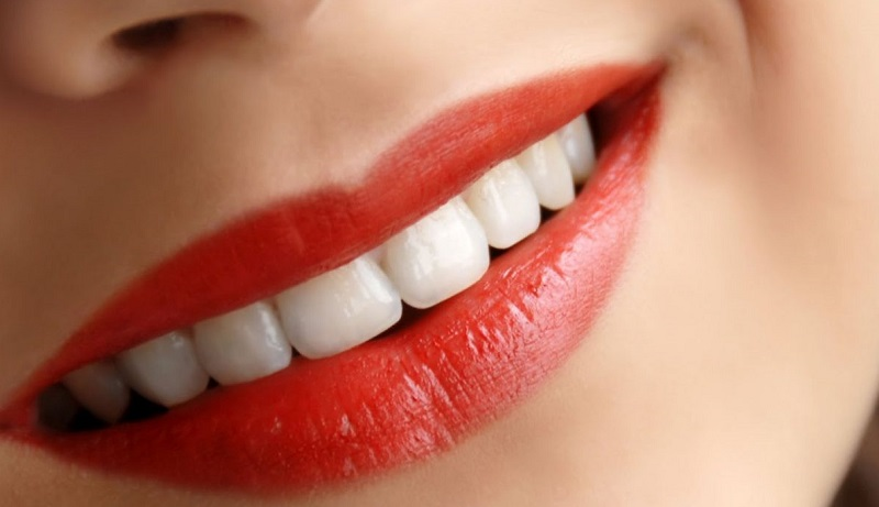 بهترین دندانپزشک زیبایی در اصفهان