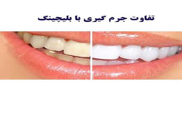 جرم گیری بهتری است یا ببیچینگ دندان ؟؟؟
