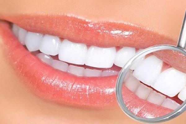 مراقبت بعد از لمینت دندان