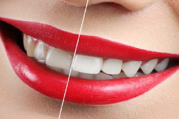 علت زرد شدن دندان