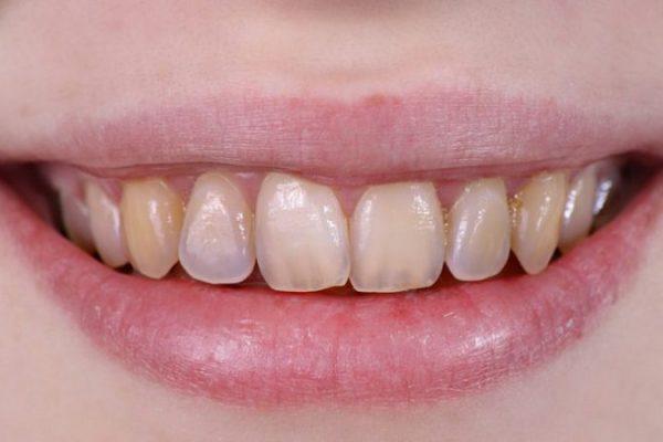 دلایل تغییر رنگ دندان ها که باید بدانیم...
