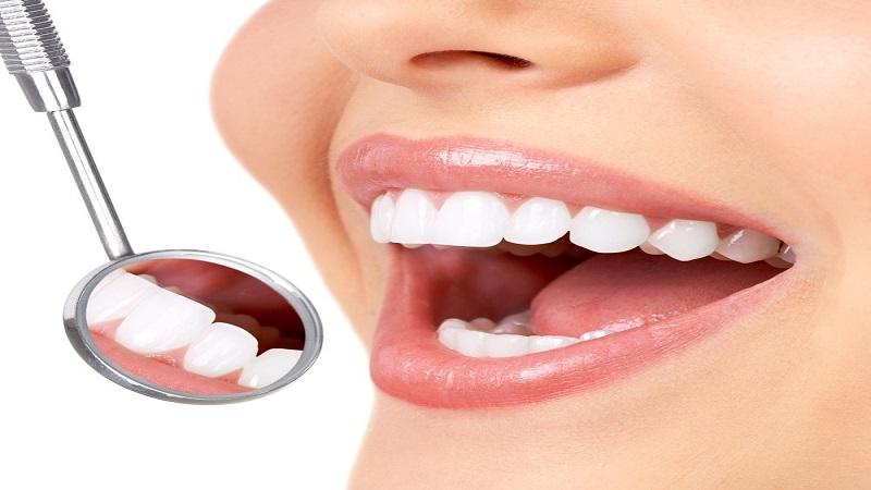 درمان های دندانپزشکی زیبایی