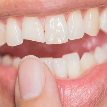 شکستن لمینت دندان