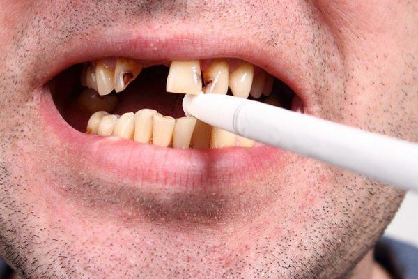 اثر دخانیات و سیگار بر سلامت دهان و دندان