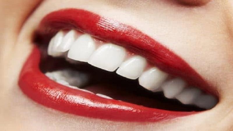 دندانپزشکی زیبایی اصفهان
