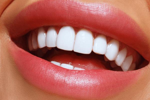 لمینت دندان اصفهان