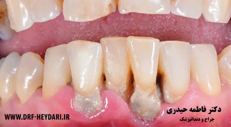 دندانپزشک زیبایی و ترمیمی اصفهان
