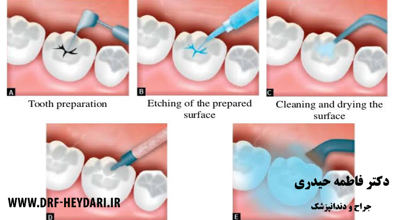 جراح دندانپزشک اصفهان