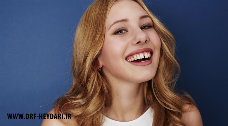 درمان فاصله بین دندان ها