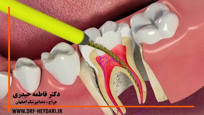 درمان ریشه دندان اصفهان