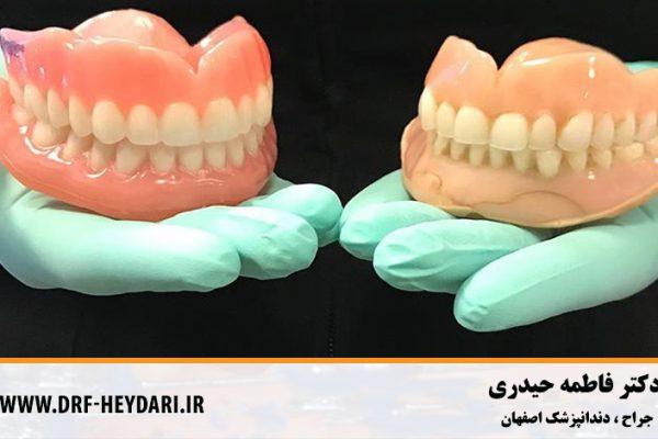 پروتزهای دندانی اصفهان