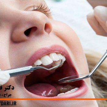 درمان حفره های دندان